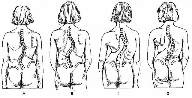 Scoliose indeling naar localisatie primaire bocht